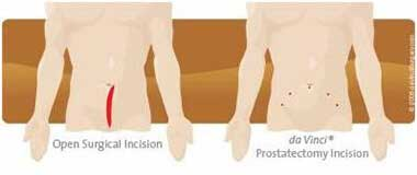 Traditional Prostatectomy Incision vs daVinci Prostatectomy Incision